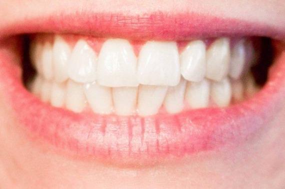 Dentistas alertam sobre sensibilidade dental
